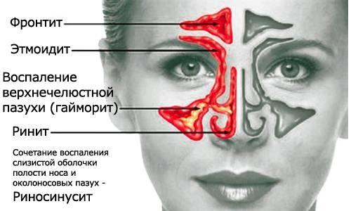 20Виды синуситов.jpg