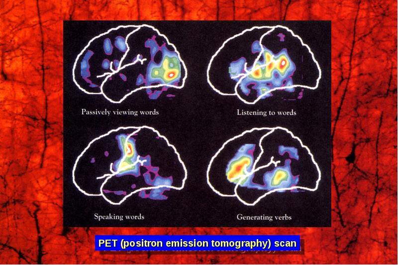 Исследование функции коры головного мозга