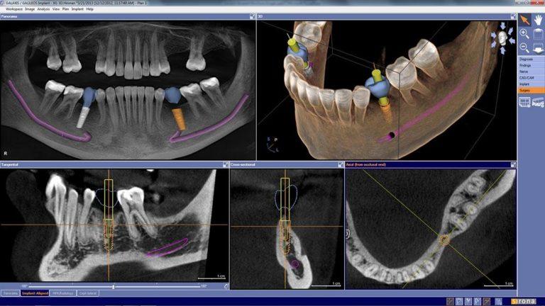 18Виртуальная имплантация.jpg