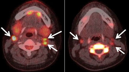 ПЭТ КТ - рак щитовидной железы