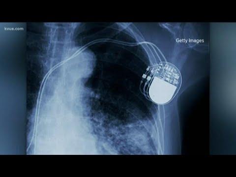 Наличие кардиостимулятора
