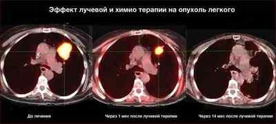 ПЭТ КТ динамический контроль эффективности лечения рака легкого