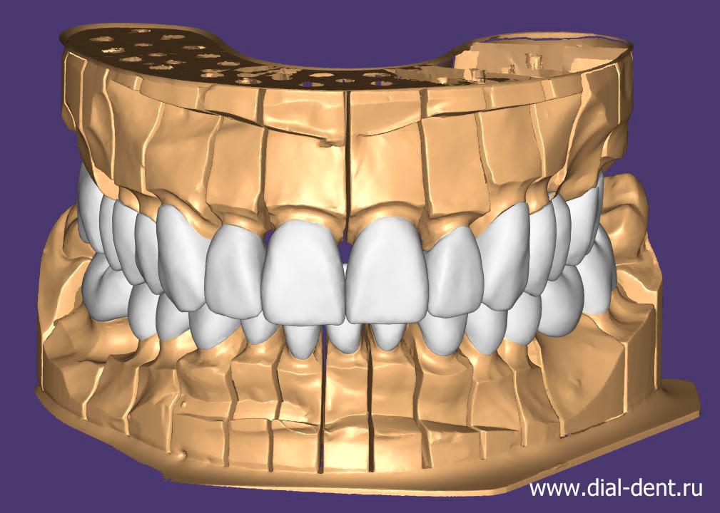 10Моделирование зуб коронок.jpg