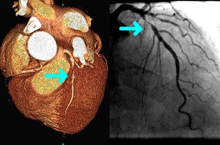 Нарушение проходимости (окклюзия) коронарной артерии