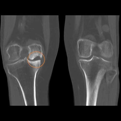 12Гонартроз коленного сустава.jpg