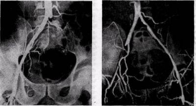 Нарушение проходимости (окклюзия) подвздошной артерии атеросклеротической бляшкой (синдром Лериша)