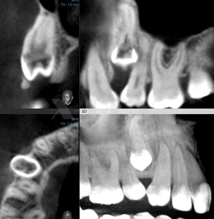 Снимок зубов, сделанный с помощью конусно-лучевой томографии
