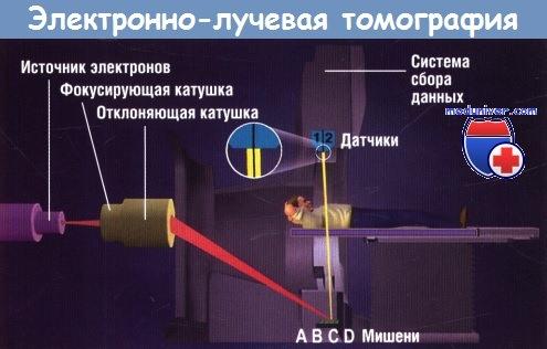 Схема электронно-лучевой КТ