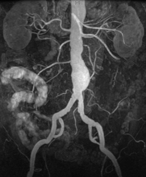 КТ аортография – аневризма брюшного отдела аорты