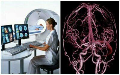 Проведение ангиографии сосудов головного мозга на компьютерном томографе