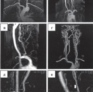 Стеноз правой позвоночной артерии при МР-ангиографии