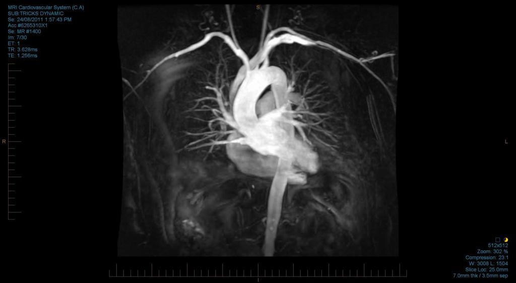 25КТ сердца с контрастом.jpg