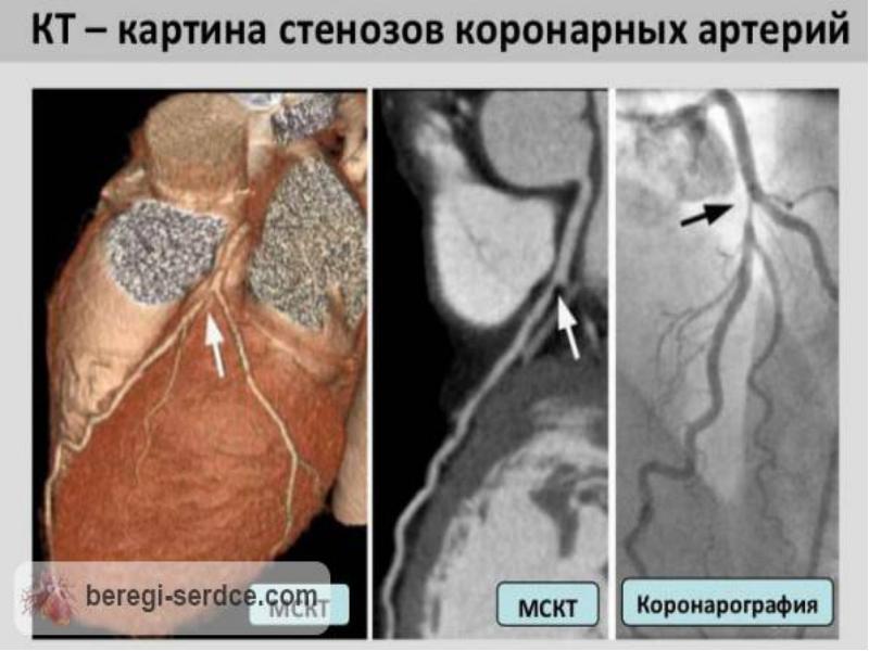 36Стеноз коронарных артерий.jpg