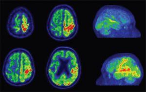 Снимок ПЭТ мозга