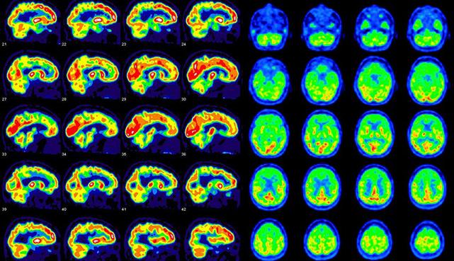 Расшифровка снимков ПЭТ КТ головного мозга