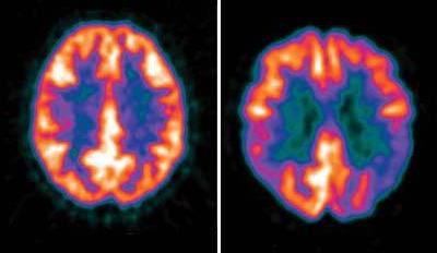 ПЭТ КТ снимок головного мозга
