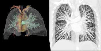КТ-ангиография легочных артерий