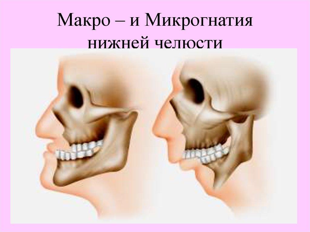 57Макро и микрогнатия нижней челюсти.jpg