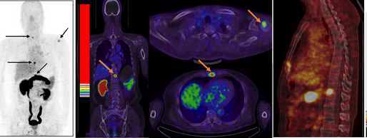Первичный рак простаты и метастаз в почке при ПЭТ Кт всего тела