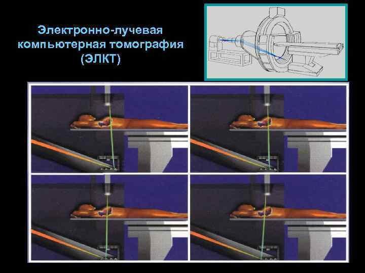 15Электронно лучевая КТ.jpg