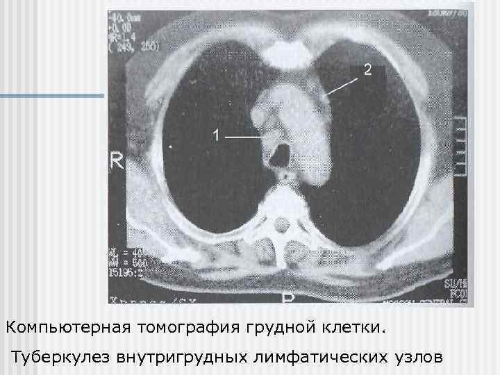 Увеличенные внутригрудные лимфатические узлы