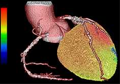 Участок ишемии миокарда (синий цвет)
