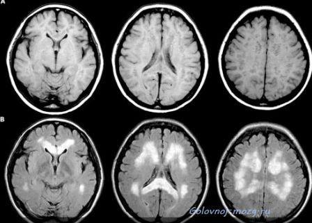 При МРТ признаки болезни Паркинсона