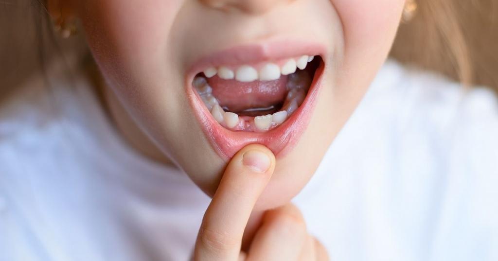 40Молочный зубной ряд.jpg