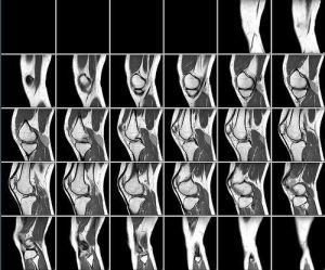 МРТ снимок колена