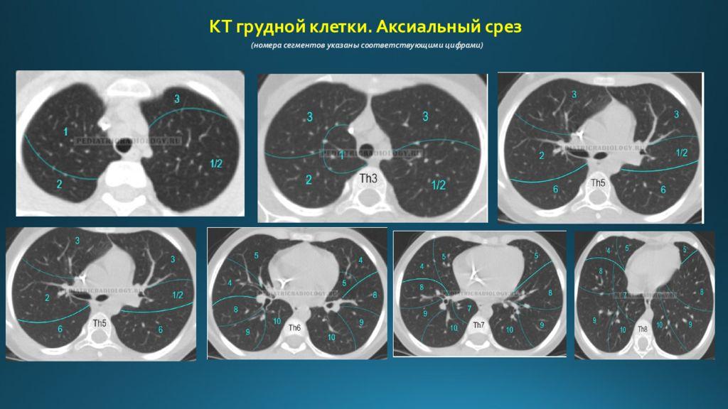 Серия послойных срезов области грудной клетки при МСКТ
