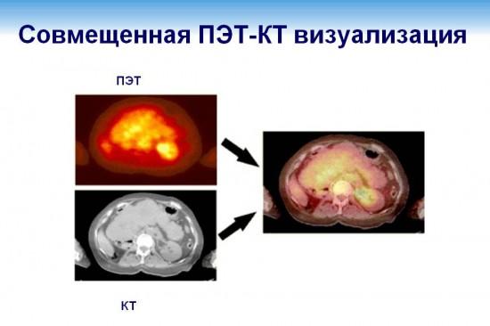 Итог совмещения изображений одной и той же зоны исследования, полученной при КТ и ПЭТ в одном томографе