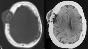 Метастаз в кости черепа