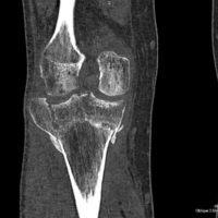 КТ коленного сустава – разрушение костной и хрящевой ткани (остеомаляция)