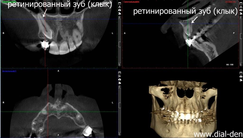41Ретенция зуба.jpg