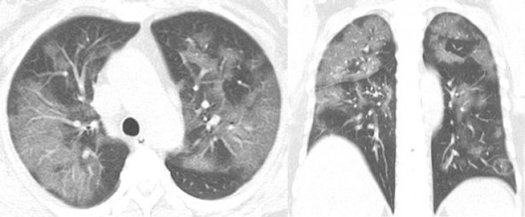 Характерные признаки коронавирусной пневмонии при КТ (симптом «матового стекла»)
