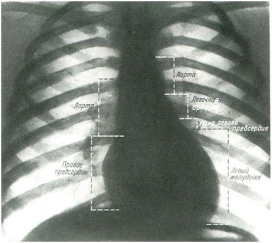 42Рентген сердца.jpg