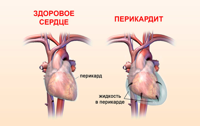 Нарушение работы сердца из-за жидкости в перикарде