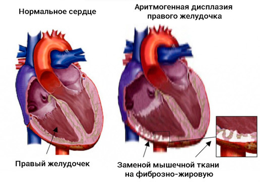 51Дисплазия правого желудочка.jpg