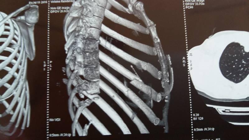 Травматическое повреждение ребер (переломы) при КТ