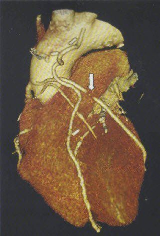 Атеросклеротическая бляшка в коронарном сосуде при ЭЛТ