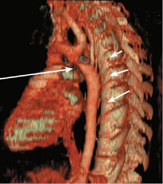 18Коарктация аорты.jpeg