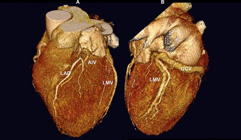 17Модель сердца.jpg