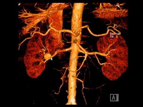 Аневризма почечной артерии при КТ-ангиографии