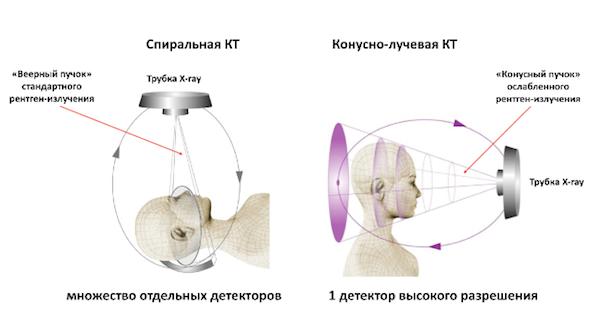 Отличие спиральной КТ и конусно-лучевой КТ. Схема