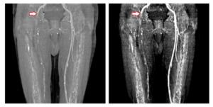 Острый тромбоз внутренней подвздошной артерии