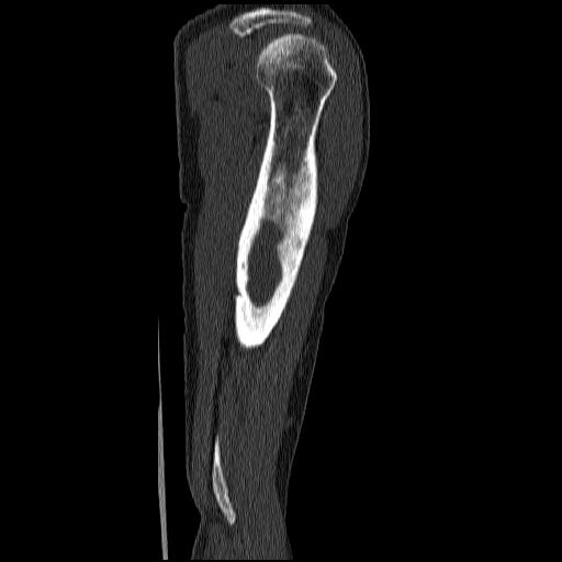 МРТ: остеомиелит в области тазобедренного сустава