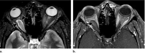 Глиома (злокачественная опухоль) зрительного нерва
