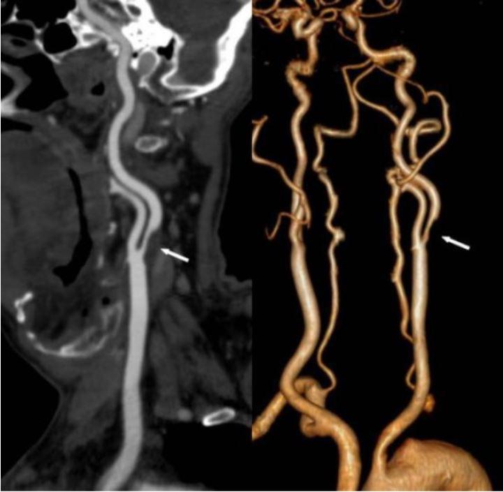 33Стеноз шейных артерий.jpg