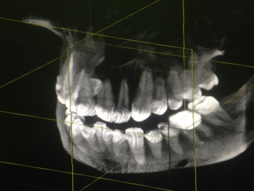 7КТ челюсти.jpg