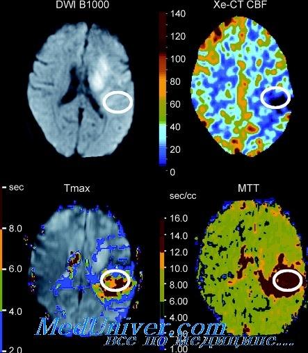 Изучение кровотока в головном мозге методом КТ с ксеноном
